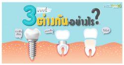 รากฟัน ครอบฟัน วีเนียร์ ต่างกันอย่างไร?